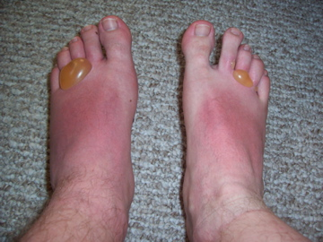 Foot blisters 6-12-07